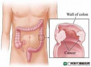 gejala-kanker-usus-besar