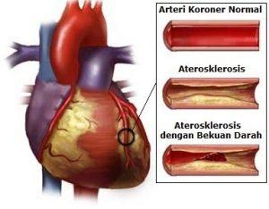 pic-arteri